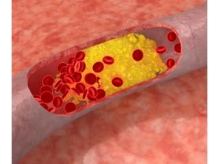 Эзетрол снизит холестерин в организме