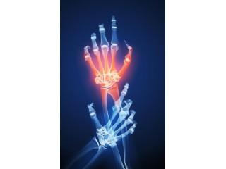 Ревматоидный артрит с Аравой не страшен